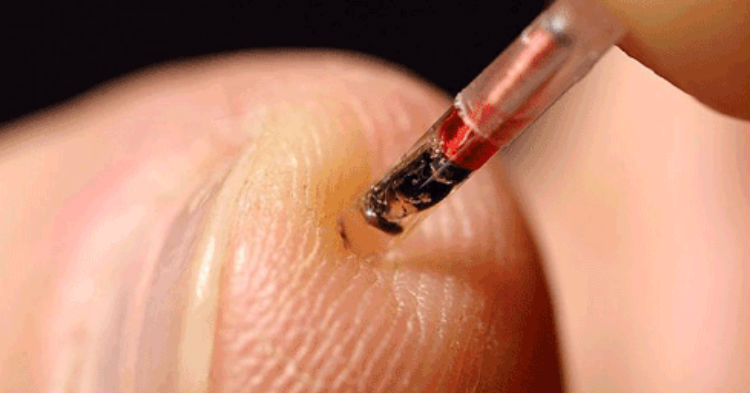 Company Asks Employees To Implant Microchip Into Their Body. Would You Work For Them?