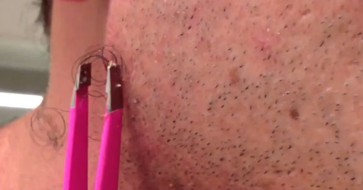 Guy Finally Decides Enough Was Enough, Grabs A Pair Of Tweezers And Yanks (video)