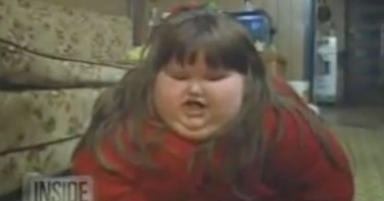 At Just 8-Years-Old She Was The Fattest Child On Earth. Wait Until You See Her 15 Years Later