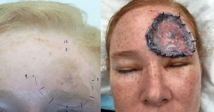 Mom Complained Of A Black Dot On Her Forehead, Then It Wouldn't Stop Growing